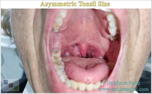 Asymmetric Tonsil Size, Asymmetrical Tonsils, Asymptomatic Tonsil Asymmetry,