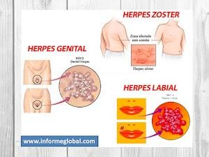 ⇒ Herpes Simplex: Tipos, Causas, Síntomas , Diagnostico y Mas