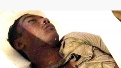 কালুখালীতে পিকনিকের বাস উল্টে নিহত-১ আহত ২১