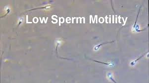 low sperm motility