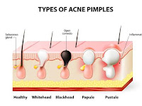 How Acne Treatment Works
