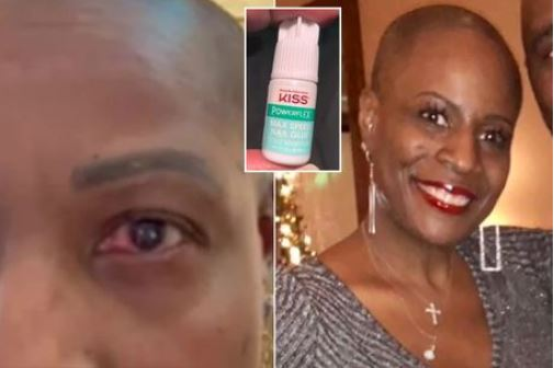 Woman Cries out after she accidentally used glue for her eyes instead of Eye Drops