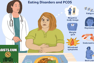 what is pcos symptoms