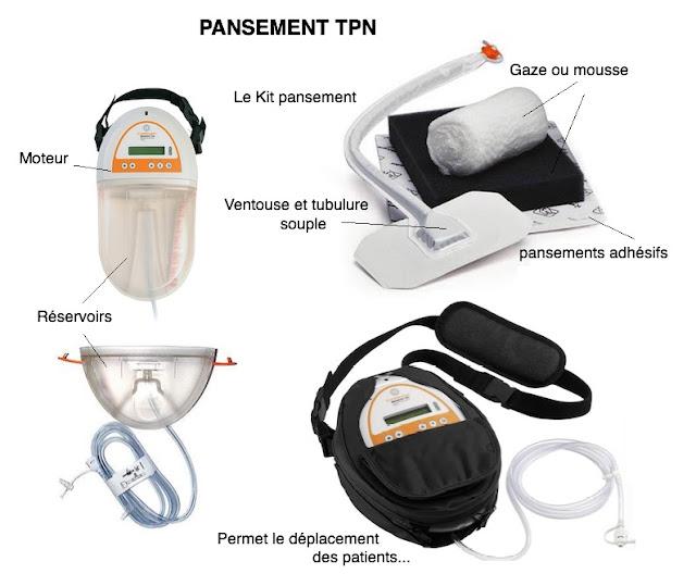 TPN pansement pression négative matériel
