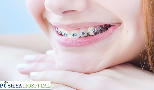Orthodontic Braces Treatment in Ahmedabad