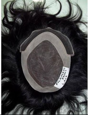 front lace hair patch system