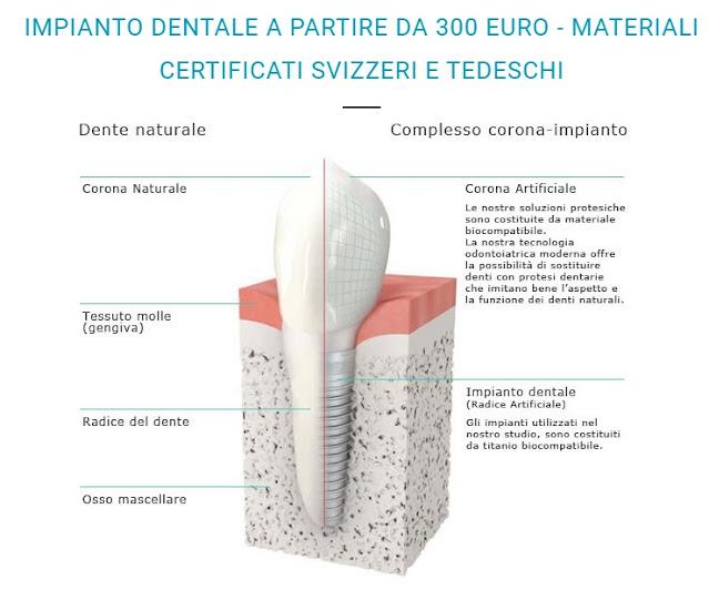 IMPIANTO DENTALE A PARTIRE DA 300 EURO - MATERIALI CERTIFICATI SVIZZERI E TEDESCHI