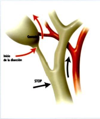 DR. JUAN HERNÁNDEZ ORDUÑA. : Colecistectomia laparoscopica 2da parte