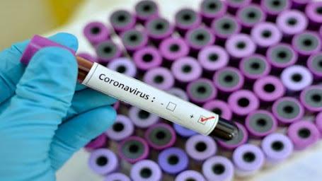 Κορονοϊός: 842  νέα κρούσματα κορονοϊού,   21  νεκροί και  283  διασωληνωμένοι