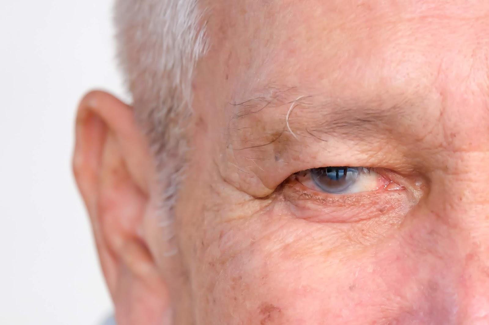10 factores que incrementan el riesgo de padecer Glaucoma