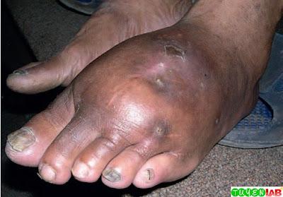 Madura foot.