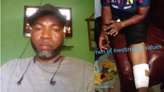 Lagos Policeman Cuts Open Wife's Leg Over Cold Meal, Says Nothing Will Happen (Photos)