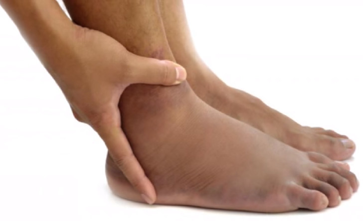 How the state of our feet can reveal a number of health issues