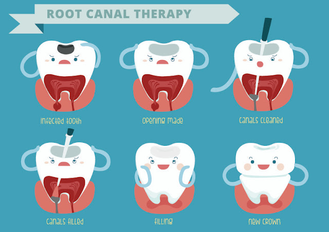 http://cosmodentists.com/general-dentistry-root-canal-treatment.html
