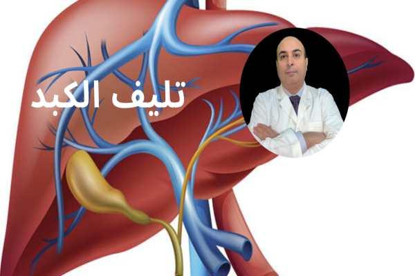 علاج تليف الكبد2020