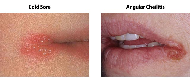 What Causes The Corners Of The Mouth To Crack What Causes The Corner Of The Mouth To Crack Angular Cheilitis Or Perleche