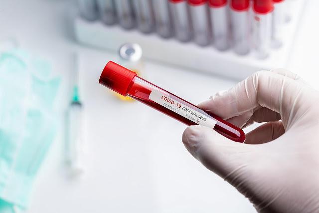 المهدية : تسجيل إصابة جديدة بفيروس كورونا