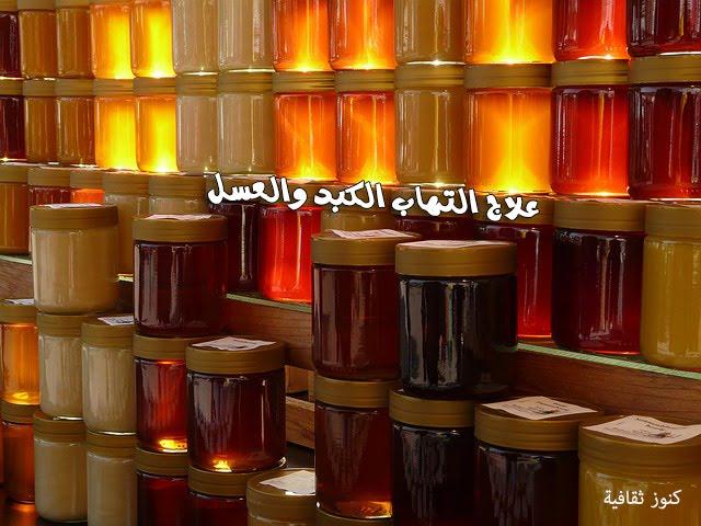 علاج التهاب الكبد والعسل