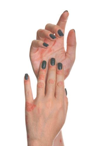 tratament homeopat dermatita atopica poze