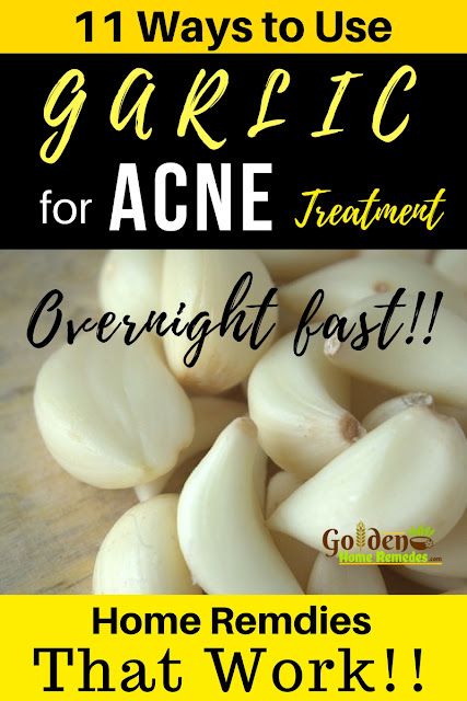 Garlic For Acne, Is Garlic Good For Acne, How To Use Garlic For Acne, Garlic And Acne, How To Get Rid Of Acne, How To Get Rid Of Acne Fast, Home Remedies For Acne, Acne Treatment, Garlic Acne,