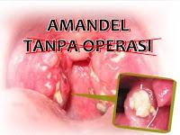 Cara Menyembuhkan Amandel Tanpa Operasi