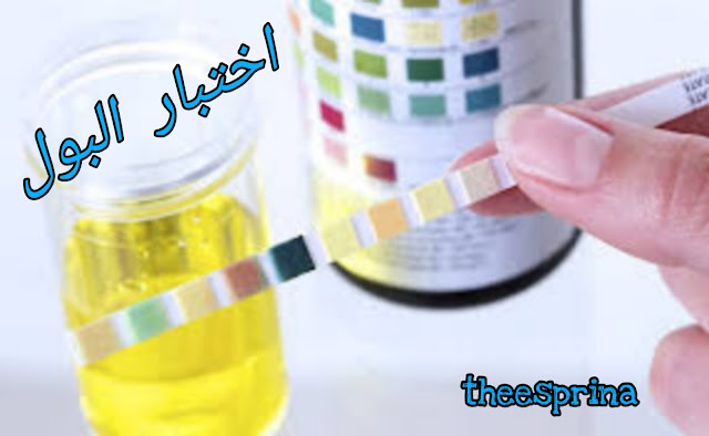 urine analysis- اختبار البول بالتفصيل