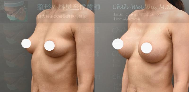 ▲2020年八月最新隆乳案例