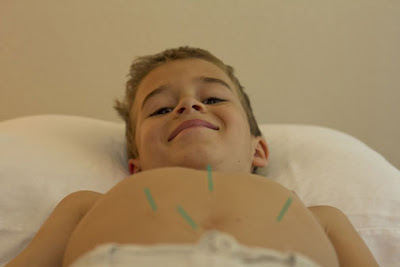 acupuncture children ottawa