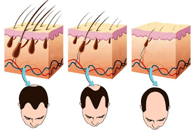 Proses terjadinya kerontokan pada rambut