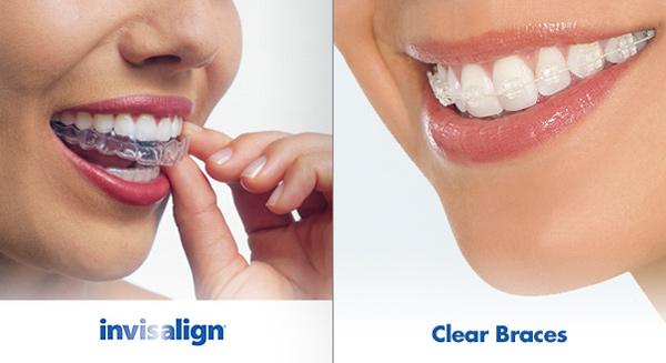 still better than dentist