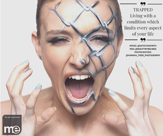 """Model Kate Stanforth with painted wire on half her face. Text reads """"trapped living with a condition that limits every aspect of your life""""."""