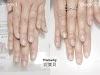 指甲矯正-甲型微調 重新處理撕剝摳咬的問題指甲