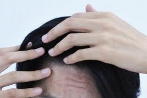 育毛剤・発毛剤が効かない6つの原因