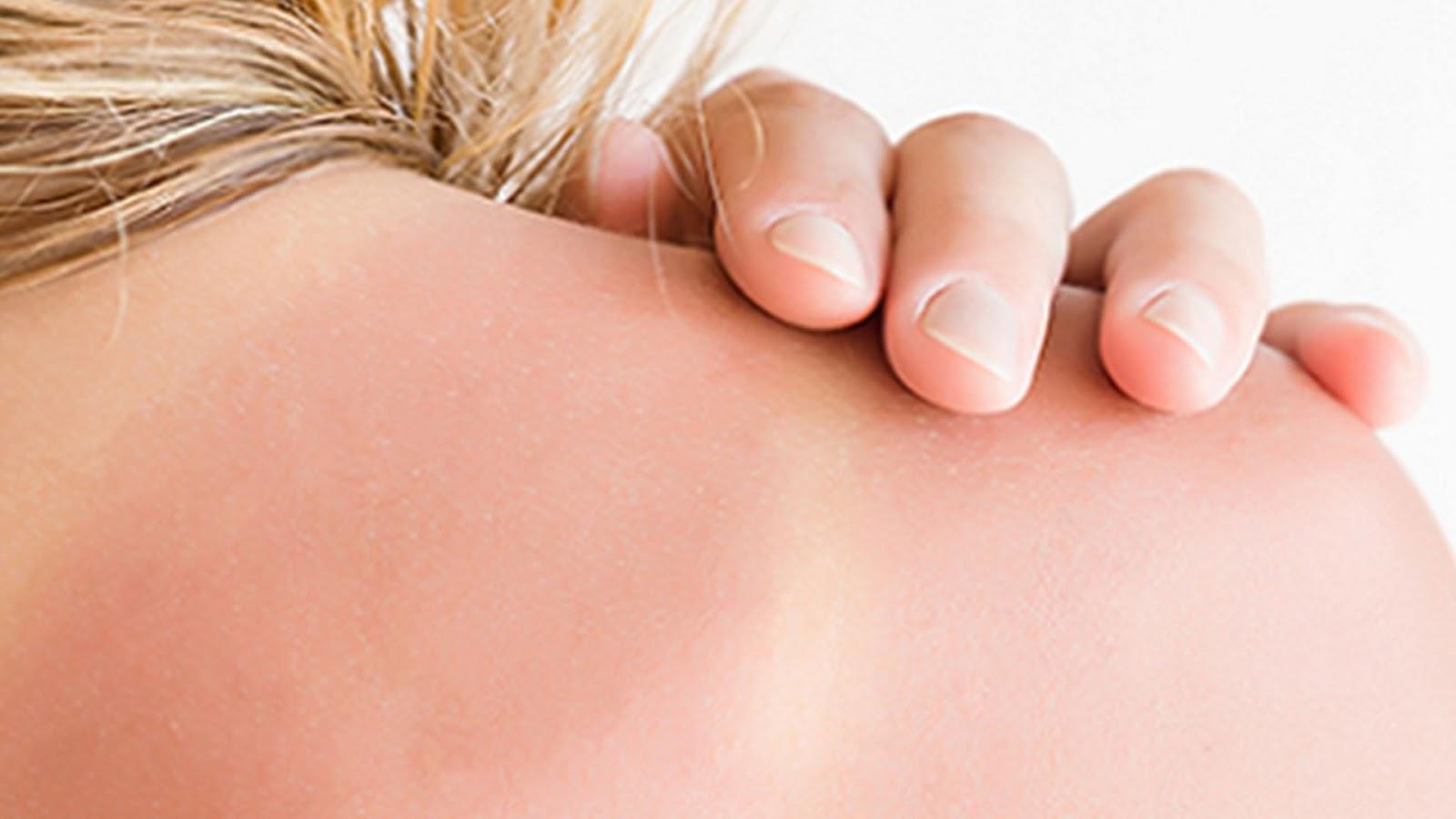 sun exposure, cancer, sunburn, UV exposure, home remedy, UV rays, alternate remedy, natural remedy,