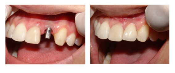 dental implant before after-nha-khoa-thuan-kieu