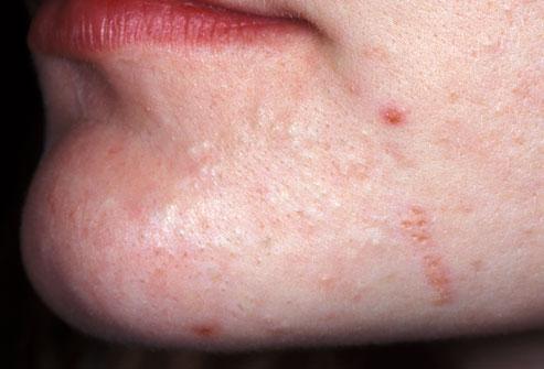 face skin breakout skincare