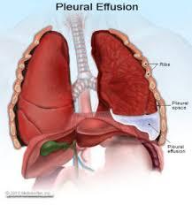 Penyakit Flek Paru-Paru