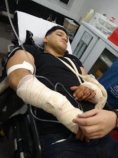 Em Cuité: Animal no asfalto provoca grave acidente e jovem picuiense é transferido para Campina Grande