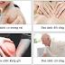 Kiểm soát cơn đau cơ xương khớp tại nhà