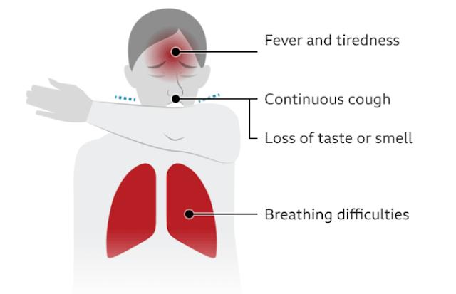 कोरोनोवायरस के लक्षण क्या है?
