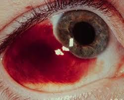 Cara menyembuhkan pendarahan pada retina