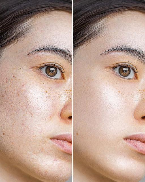 Recette masque facile et efficace pour resserrer les pores dilatés