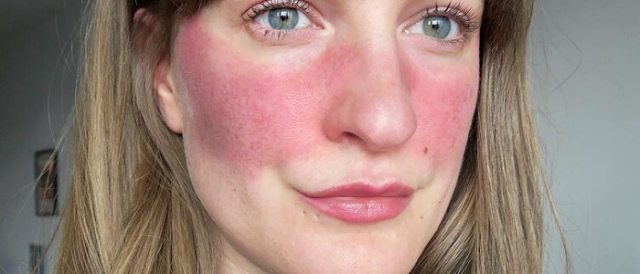 These are the 5 most common mistakes people with rosacea make in their skin-care routines