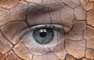 Memahami Dry Eye Syndrome, apakah saya mengalaminya?
