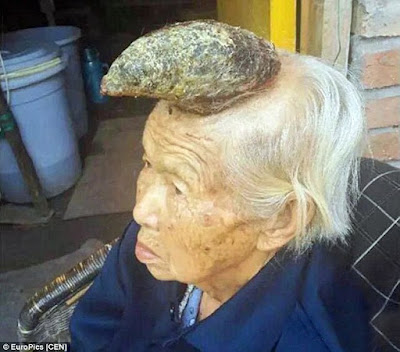 Liang Xiuzhen, 87-year-old, has a Cutaneous horn, a keratinous skin tumor with the appearance of a horn