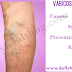Varicose veins: Causes, Symptoms, Prevention.