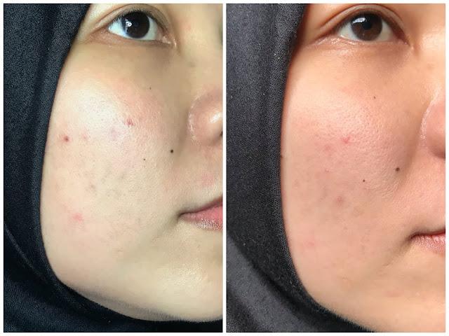 review elsheskin radiant skin serum