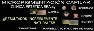 Micropigmentación capilar Marbella