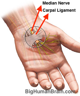 Carpal tunnel is formed by metacarpal bones and carpal ligament or flexor retinaculum. Through this tunnel median nerve passes along with other 8 tendons and 1 muscle.