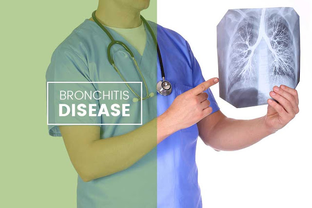 Kenali Gejala dan Penyebab Penyakit Bronkitis
